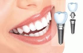 osobennosti-i-dostoinstva-implantacii-zubov